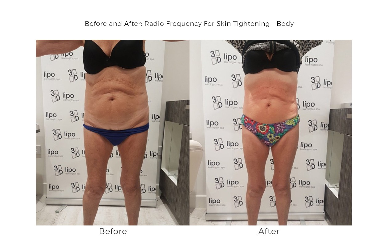 Skin Tightening - Radio Frequency