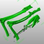 CT scan DICOM data 3D rendering