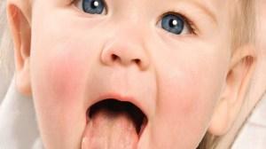 foto_acetone nei bambini