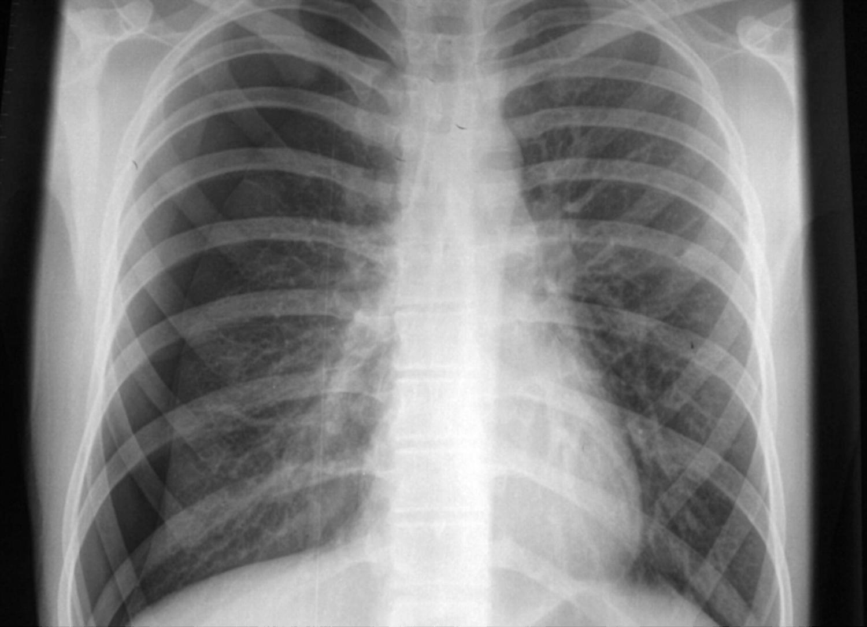 Chest X Ray Challenge Pem Blog