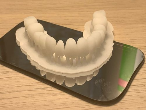 NextDent MFH BL full arch denture teeth in less than 25 minutes