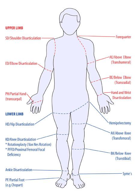 Amputations - Physiopedia