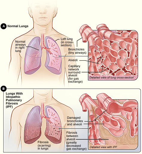 define pulmonary embolism