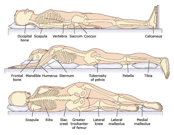 Foot Diagram Pressure Ulcer Wiring Schematic Diagram