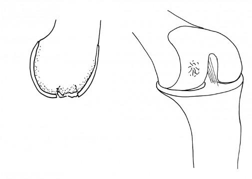 acute injury bruise diagram
