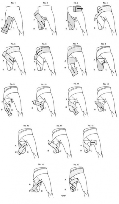 Pre-fitting management of the amputee - Physiopedia