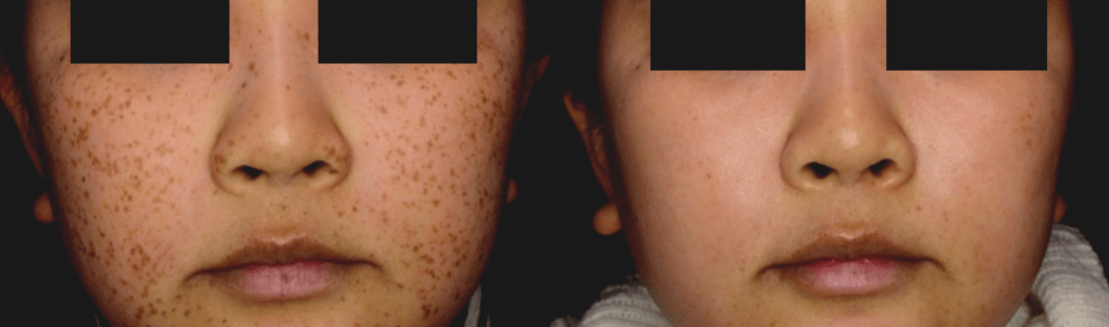 Before & After 1 Treatment | Courtesy of S. Shin, MD
