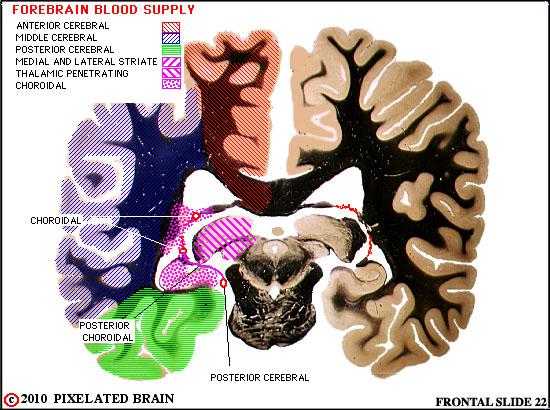Pixelated Brain Neuroanatomy for Medical Students Module 10