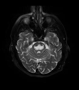 MRI_Central_Pontine_Myelinolysis_fat_sat_T2
