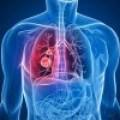 Belladona contra bronquitis, tos, espasmos musculares, contracturas, resfrios, etc.