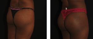 implants fessiers 4 avant/apres