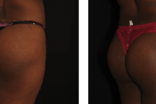 Implants fessiers 3 avant/apres vue 3/4