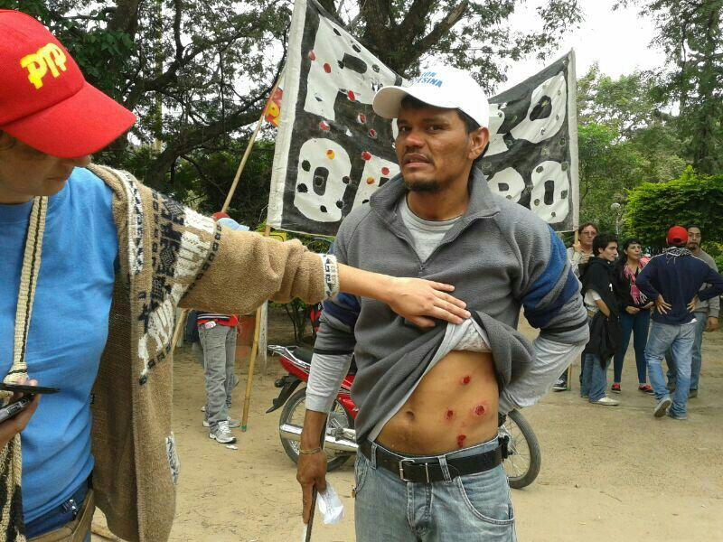 Los rastros de las balas de goma en un manifestante.