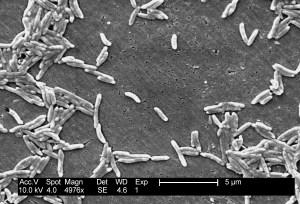 Bacterias vistas a través del microscopio