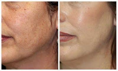 Dermabrasion for Skin Rejuvenation