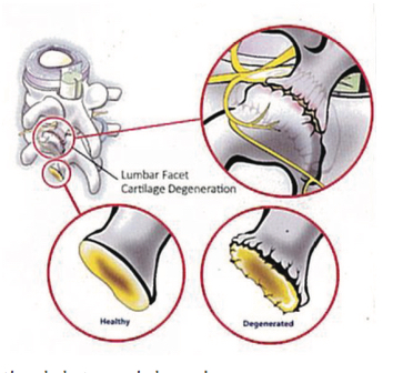 Lumbar Radiofrequency Ablation (RFA) for Lower Back Pain Point