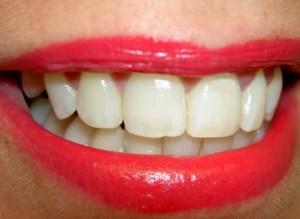 dentes jpe