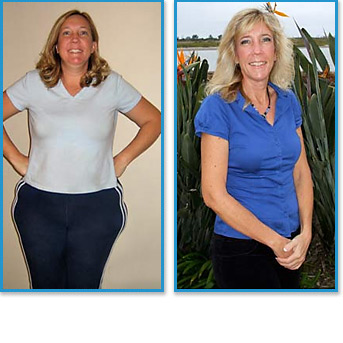 Cyndi: Lost 86 lbs. | Positive Choice