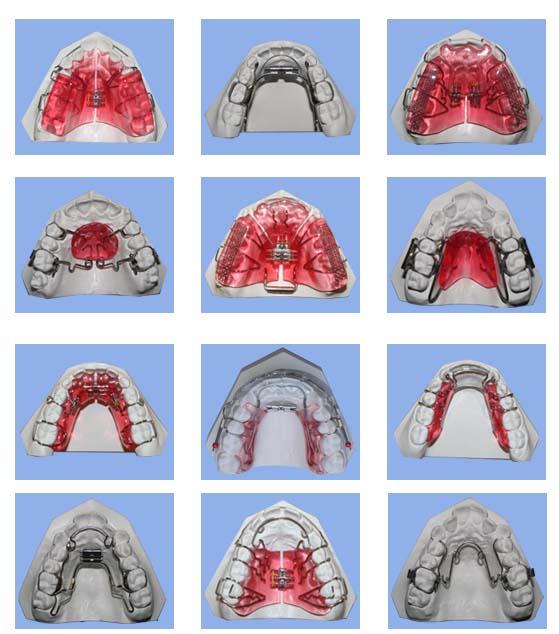 Treatments -\u003e Orthodontic appliances - Dr Prachi Patil\u0027s