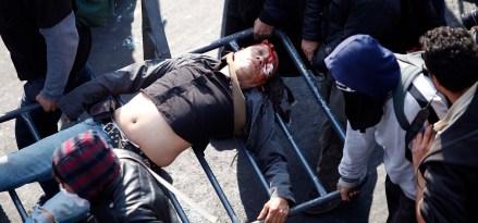 Juan Francisco Kuykendall , de 67 años, herido de gravedad durante protestas. Foto: Xinhua / Ana Esquivel