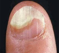 Nail psoriasis is normally closely followed by a bit of discolouration