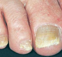Nails can begin to crumble at their ends with psoriasis
