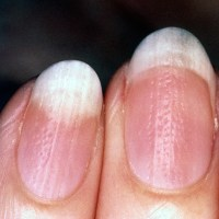 Nail pitting is a common symptom of nail psoriasis