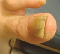The nail can look a bit thick when you get psoriasis