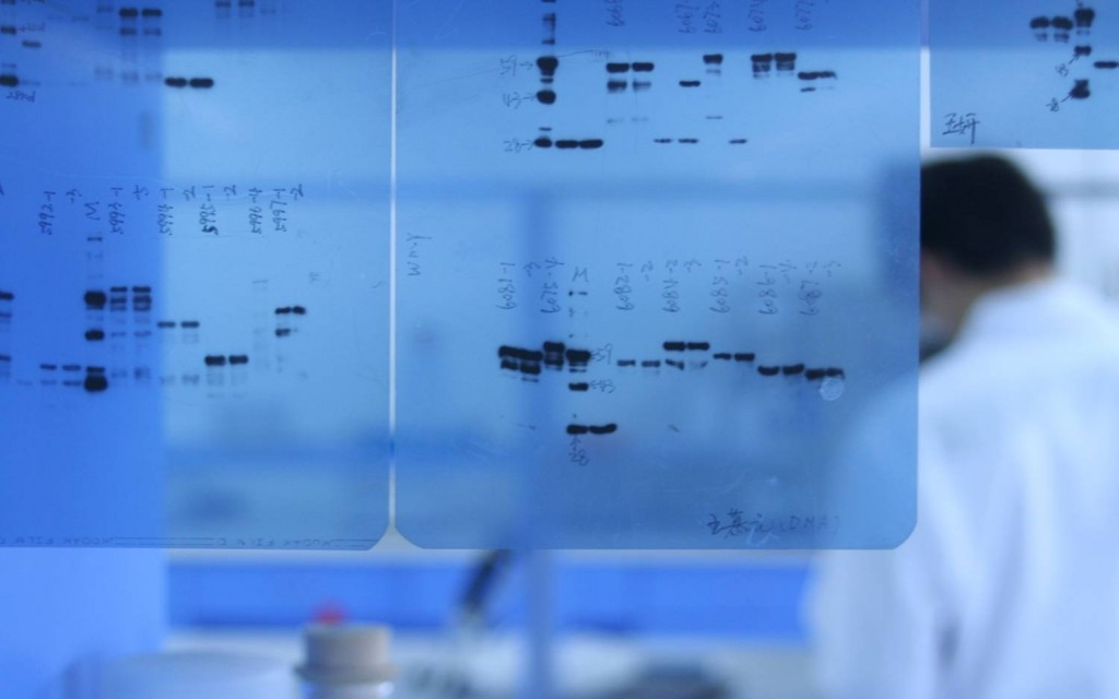 7 Tips For Optimizing Your Western Blotting Experiments