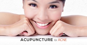 Acupuncture for Acne - PULSE TCM Clinic Singapore