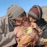 رجل بدون وجه وزوجته بقدم واحدة ينجبان طفلة جميلة