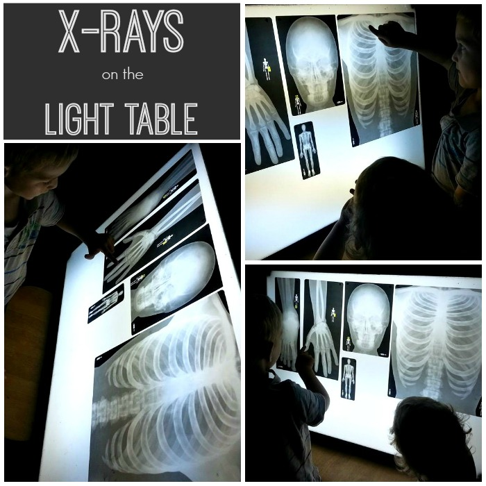 xrays light