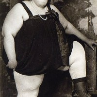 Dolly Dimples, ou le record de perte de poids