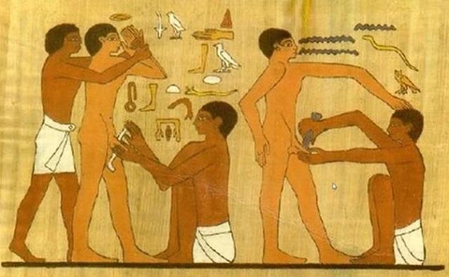 El Brit Milá: la circuncisión en la Biblia