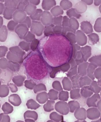 Leukemia cells.
