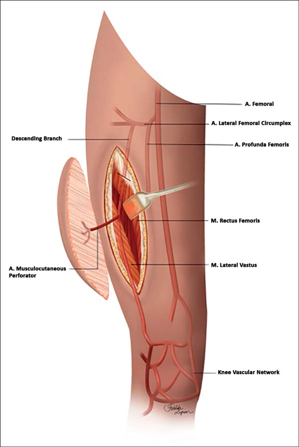 RBCP - Reverse anterolateral thigh flap a reconstruction option for