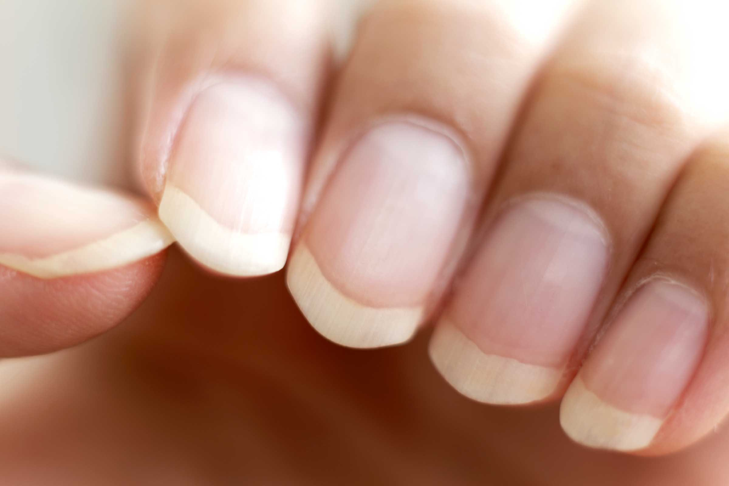 What Fingernail Health Reveals About Your Body Readers