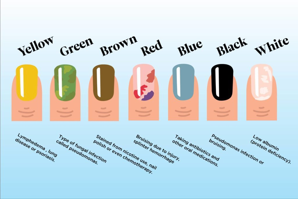 What Your Nail Color Says About Your Health Reader39s Digest