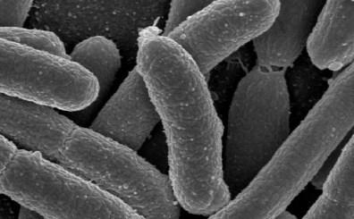 Probiotics and LDL cholesterol