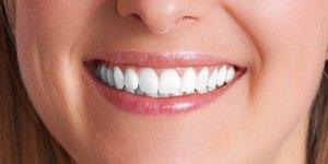 Dental Implant 02