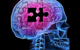 alzheimers-brainpuzzle-512