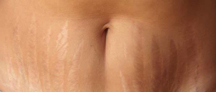 How Can I Get Rid of Stretch Marks?