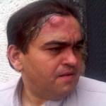 Carlos Correa, director de Espacio Público, resultó golpeado durante manifestación hacia la AN