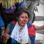 joven venezolana fue herida por fuerzas de seguridad del régimen de Maduro 2
