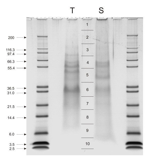 SDS-PAGE separation of test and spine organic matrix proteins The
