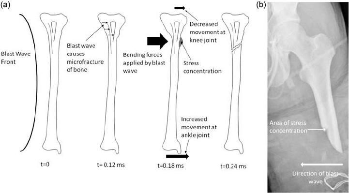 diagram of tibia stress fracture