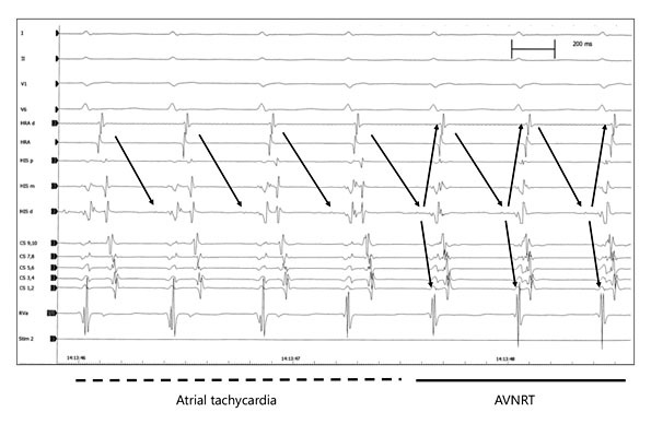 Spontaneous transition from atrial tachycardia (CL 420 ms) to