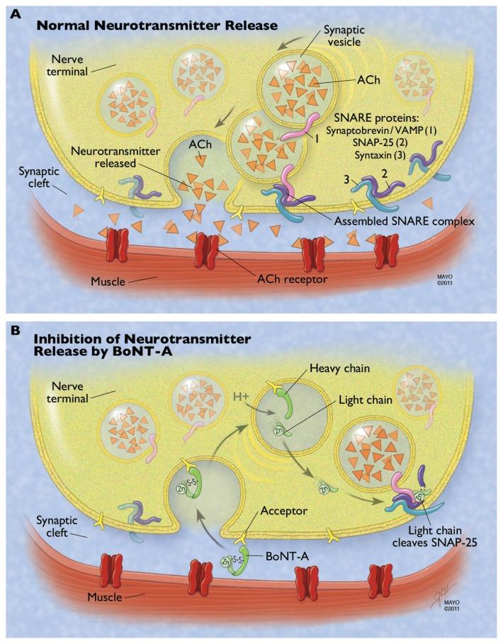 Mechanism of botulinum neurotoxin type A (BoNT-A) at the - neuromuscular junction