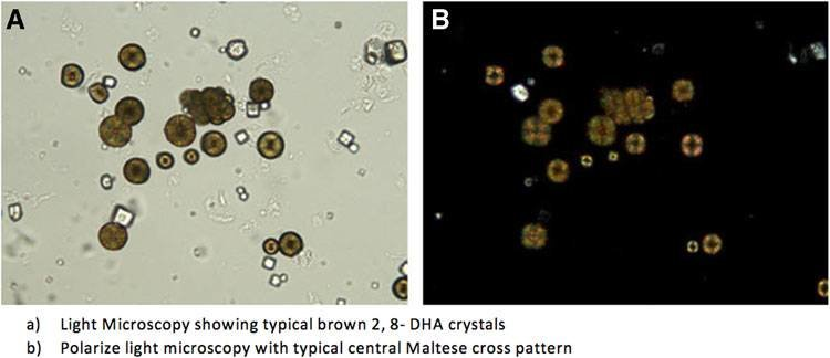 A) Light microscopy showing typical brown 2,8-DHA crystals (B
