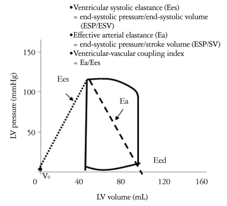Schematic diagram of the pressure-volume loop for the left ventricle